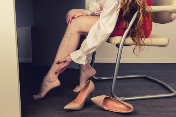 Which occupations are most often linked to varicose veins